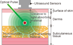 Principles of Photoacoustic Imaging